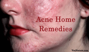 9 Effective Home Remedies for Acne