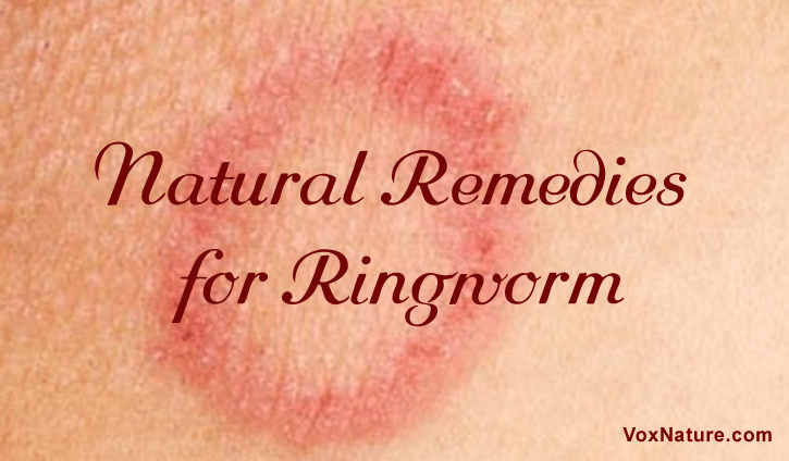 21 Natural Remedies to Get Rid of Ringworm
