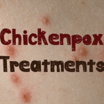 7 Best Natural Chickenpox Treatments