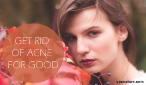 Lifestyle Changes to Get Rid of Acne for Good