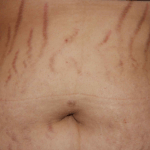 Natural Ways to Eliminate Stretch Marks