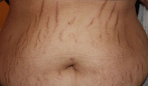 Stretch Mark Remedies from Home