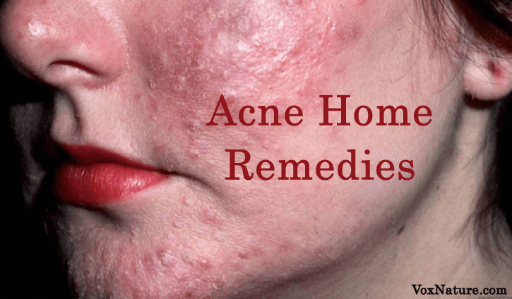 For anyone who has ever suffered from acne 9 Effective Home Remedies for Acne