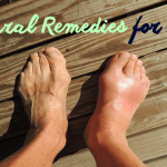 10 Natural Home Remedies for Gout