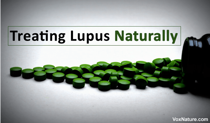 Lupus is a chronic autoimmune disease that can result in damage to various parts of the bo Treating Lupus Naturally