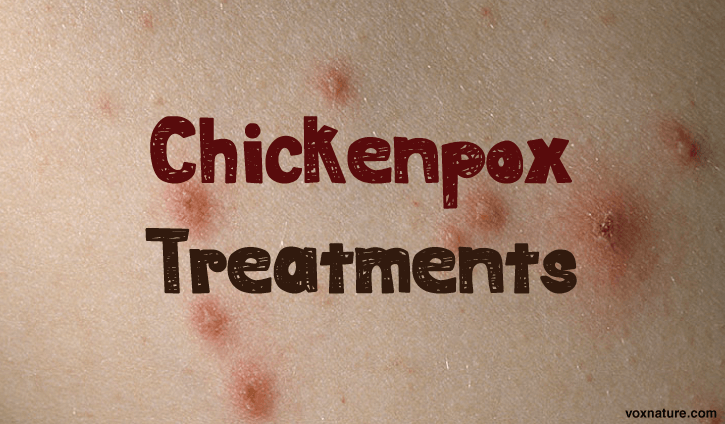 there are still many children that contract chickenpox  7 Best Natural Chickenpox Treatments