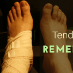 8 Natural Solutions for Foot Tendonitis