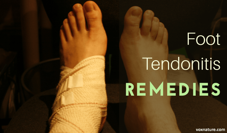 Tendonitis of the foot is simply inflammation and irritation of those tendons 8 Natural Solutions for Foot Tendonitis
