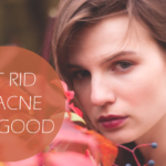 8 Lifestyle Changes to Get Rid of Acne for Good