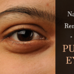 Natural Solutions for Periorbital Edema (Puffy Eyes)