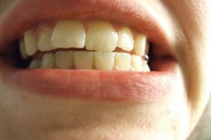 Health Issues Linked to Bad Oral Health