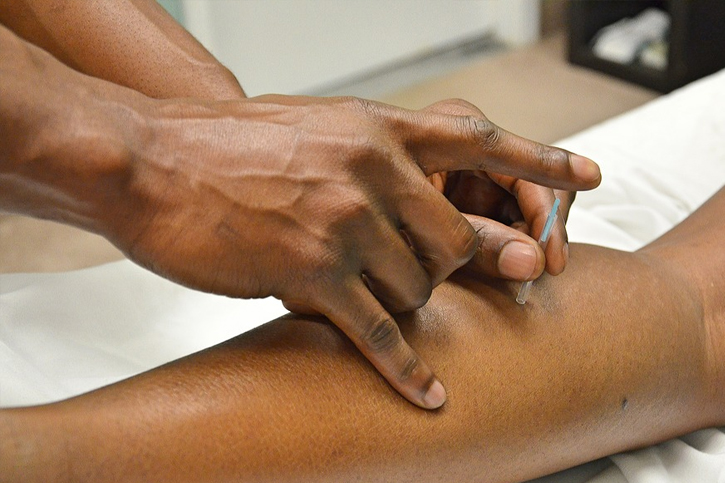 Acupuncture is used to treat muscle tension What Are the Benefits of Acupuncture?